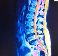 Mri of  lumbar spine stenosis Royalty Free Stock Photo
