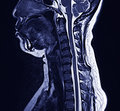 MRI neck Royalty Free Stock Photos