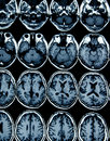 MRI scan of brain for diagnosis Royalty Free Stock Image