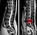 MRI scan sagittal view Lumbosacral spine has straightening lumbar alignment, L5-S1