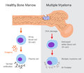 Multiple Myeloma Diagram