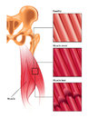 Muscle strain and tear medical illustration of Royalty Free Stock Photography