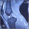 My knee MRI -  damage of cross-shaped ligaments Royalty Free Stock Photography