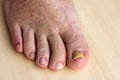 Nail fungus on the toenails and skin spots pathological changes in feet Stock Photo