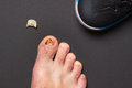 Nail injury consequences of wrong sized sport shoe Royalty Free Stock Photos
