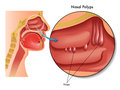 Nasal polyps medical illustration of the effects of Royalty Free Stock Photos