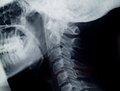 Neck radiography Stock Images