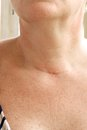 Neck scar after thyroidectomy.Closeup Royalty Free Stock Photo