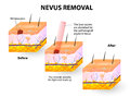 Nevus removal moles spots can be removed with lasers vector illustration Stock Image