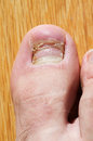 New toenail right foot growing after accident Stock Image