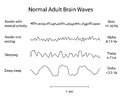 Normal Brain Waves EEG Royalty Free Stock Photo
