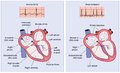 Normal heart electrical conduction and atrial fibrillation drawing of the system showing activity erratic impulses in Royalty Free Stock Photography