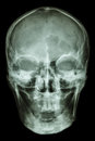 Normal human skull film ap antero posterior show Royalty Free Stock Photography
