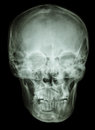 Normal human skull film ap antero posterior show Stock Photo