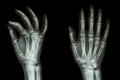 Normal humans hand film x ray ap oblique show Royalty Free Stock Images