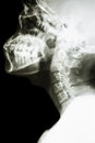 Normal thai mans cervical spine film x ray lateral show Stock Photo