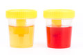 Normal urine and bloody urine Royalty Free Stock Images