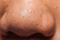 Nose containing a lot of pimples blackhead Royalty Free Stock Photo