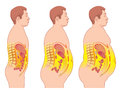 Obesity medical illustration of the consequences of Stock Images