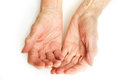 Old lady s hands open my mother at years with arthritic Royalty Free Stock Photography