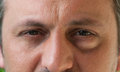 One eye with conjunctivitis man or male having eyesore as medical condition Stock Photos