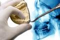 Orthodontics tool show molar tooth over x-ray Royalty Free Stock Photo