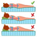 Orthopedic Mattress Vector. Sleeping Position. Bad And Good. Various Mattresses. Comfortable Bed. Pillow. Correct Spine