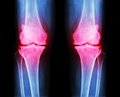 Osteoarthritis both knee . film x-ray AP ( anterior - posterior ) of knee show narrow joint space , osteophyte ( spur ) , subcond