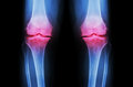 Osteoarthritis Knee ( OA Knee ). Film x-ray both knee ( front view ) show narrow joint space ( joint cartilage loss ) , osteophyte Royalty Free Stock Photo