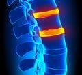 Osteophyte formation disc degeneration spine problem Royalty Free Stock Images