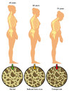 Osteoporosis 3 Royalty Free Stock Photo