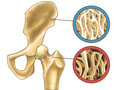 Osteoporosis skeleton close up showing normal bone and digital illustration Royalty Free Stock Photography