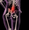 Overweight female skeleton with back pain Stock Photography