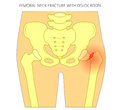 Pain in the hip joint_femoral neck fracture with dislocation