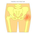 Pain in the hip joint_femoral neck fracture