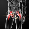 Painful hip joint d rendered medical illustration of a back view Stock Images