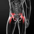 Painful hip joint d rendered medical illustration of a back view Stock Image