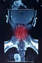 Painful neck x ray red point for your know your healthy Royalty Free Stock Photography