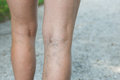 Painful varicose and spider veins on womans legs Royalty Free Stock Photo