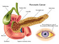 Pancreatic cancer medical illustration of the effects of Royalty Free Stock Images