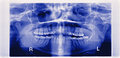 panorama of damaged jaw erosion of the joint TMJ Royalty Free Stock Photo