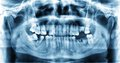 Panoramic dental x-ray image of teeth