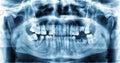 Panoramic dental x-ray image of teeth