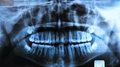 Panoramic dental x ray of a mouth with intact wisdom teeth radiography also called is a two dimensional d Stock Photography