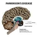 Parkinsons Disease Royalty Free Stock Photo