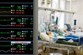 Patients monitoring in ICU Royalty Free Stock Photo