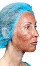 Peeling TCA.Cosmetology. Royalty Free Stock Photo