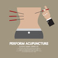 Perform Acupuncture Royalty Free Stock Photo