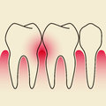 Periodontal disease on light gray background Royalty Free Stock Images