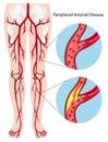 Peripheral arterial disease diagram illustration Royalty Free Stock Images